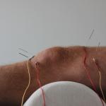 acupunctuur voor de bestrijding van pijn en revalidatie
